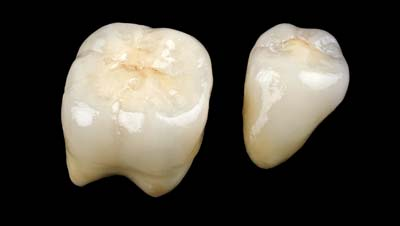 bigstock-Ceramic-Crowns-51567442
